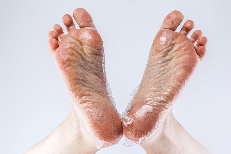 Bij Prolanda kunt u ook terecht voor eelt verwijderen van de voeten.